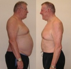 Weight Loss Using Hypnosis. Can You Really Lose Weight Without Diets, Get Rid Of Belly Fat & See Long Term Weight Loss?