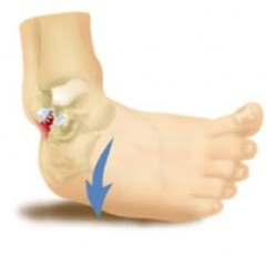 10 Positive Things About Having a Sprained Ankle
