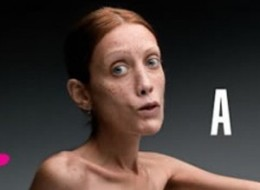 Isabella Caro was a model who became an anti-anorexic spokesperson. She posed in shocking Italian ads to warn people of eating disorders