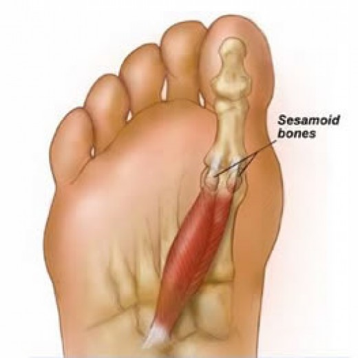 Sesamoid Bones in the foot