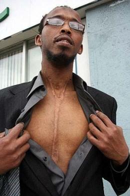 Victim of Somali gang violence.