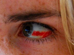 Ophthalmology - Subconjunctival Hemorrhage