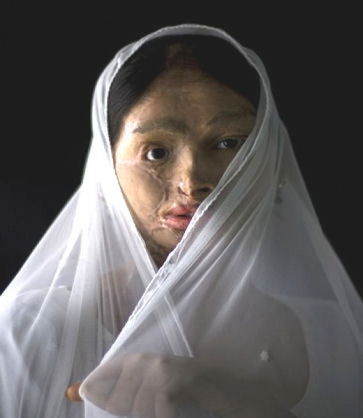 ANOTHER GIRL, DEFORMED BY ACID.