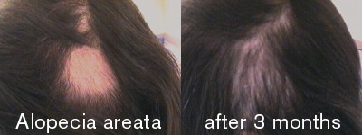 Alopecia areata is often characterised by patchy hair loss. Here it's shown before and after treatment