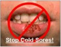 Cold Sores - We can erradicate this problem