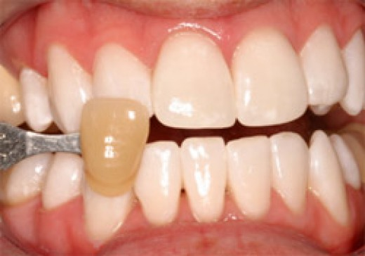 How To Remove Nicotine Stains From Teeth Naturally