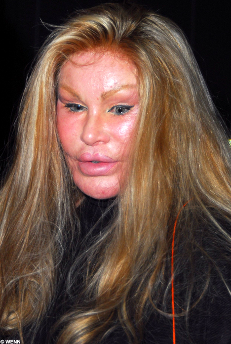 Jocelyn Wildenstein. Image from  Mail Online