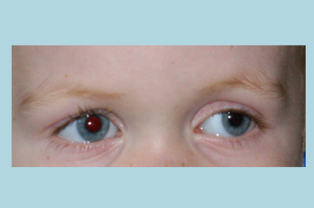 This child's left eye displays a slight outward drift: a preschool vision screening identified significant myopia in this eye.