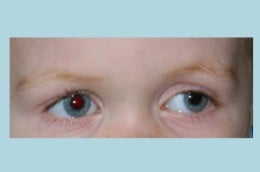 An example of strabismus (this is my son's left eye wandering outward). This is NOT the same as amblyopia. In fact, my son's amblyopic eye is the one that is looking straight ahead! Amblyopia is invisible to the outside observer.