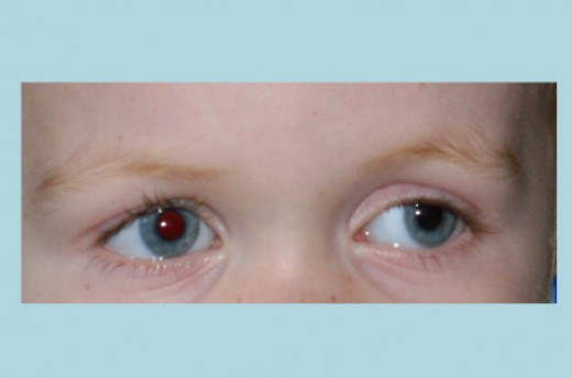 A full vision exam will determine whether the eyes are properly aligned (in this example, the child's left eye is wandering out - a condition known as exotropia).