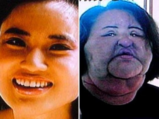 The horrendous effects of cooking oil injections on a womans face. Image from The Telegraph.