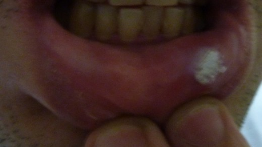 application of aspirin paste on the canker sore