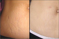 Laser Stretch Mark Treatment - Before and After