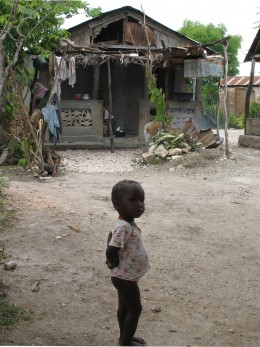 Malnourished baby in Haiti