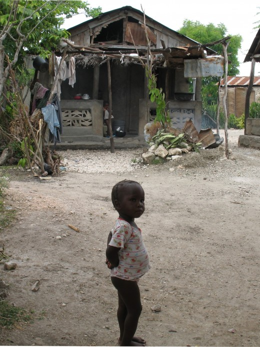 Malnourished baby in Haiti