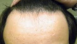 How to Treat or Prevent Hair Loss