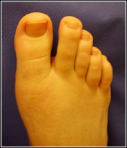 Ingrown Toenails and Home Remedies