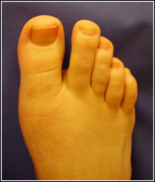 The big toe is the most common place people discover them. Though, the baby toe is a close second.