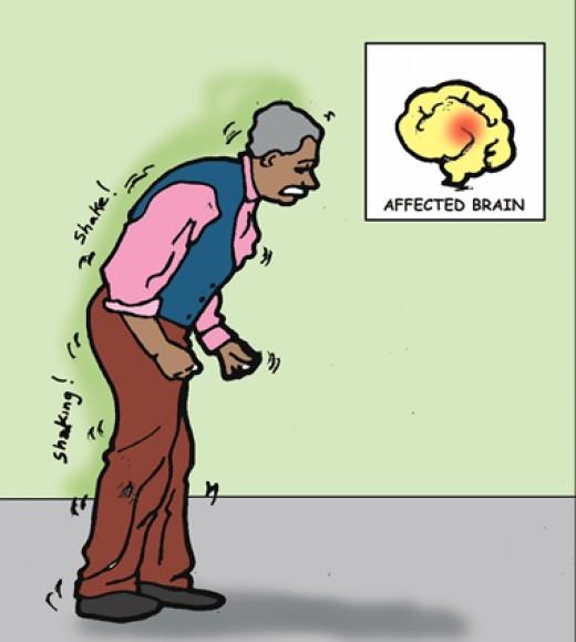Abnormal gait patterns in parkinsonisms