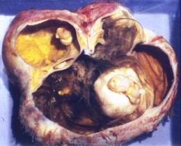 An ovarian dermoid cyst excised open. You can clearly see the large tuft of hair, fat and other tissue. It is benign.