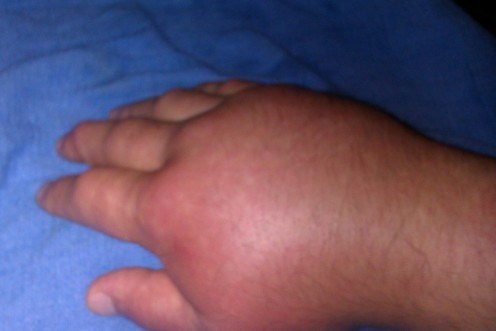 My hand just three days ago. (4-19-2011)