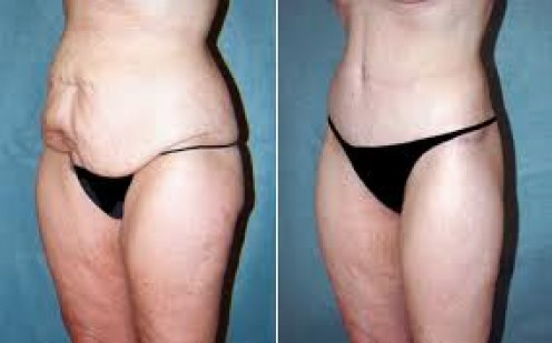 Before and after pics for tummy tucks
