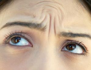 Dynamic wrinkles on forehead