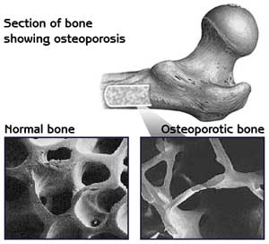 Treatment for osteoporosis first starts with prevention of osteoporosis.