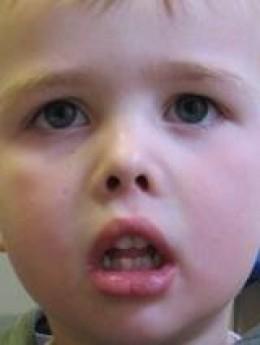long face syndrome or adenoid facies