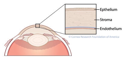 Fuchs dystrophy is a hereditary abnormality of the inner cell layer of the cornea known as the endothelium. The purpose of this layer is to pump fluid out of the cornea, keeping it thin and crystal clear
