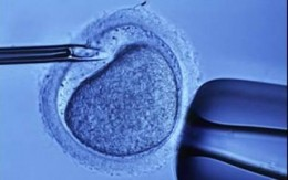 The ova is fertilized in laboratory conditions and matured slightly before being implanted in the uterus. It is a long, intensive and expensive treatment that many couples consider a last resort.