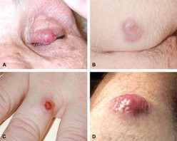 What is Merkel Cell Carcinoma?