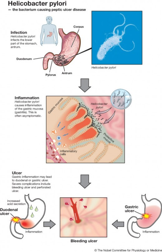 How heliocbacter pylori causes peptic ulcers