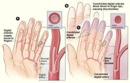 Raynaud's Disease can cause Tingling in Fingers and Hands
