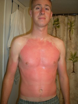 SUNBURN!  by Coastie Wife 2008, on Flickr