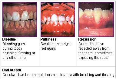 Signs of tooth and gum disease