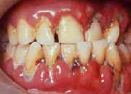 Untreated periodontitis