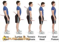 Signs of Poor Posture - Do You Have Them?
