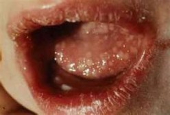 Symptoms, Signs, and Treatment of Oral Herpes on Tongue and Genital Herpes in Male and Women