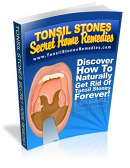 Tonsil Stones: What They Are and How to Get Rid of Them
