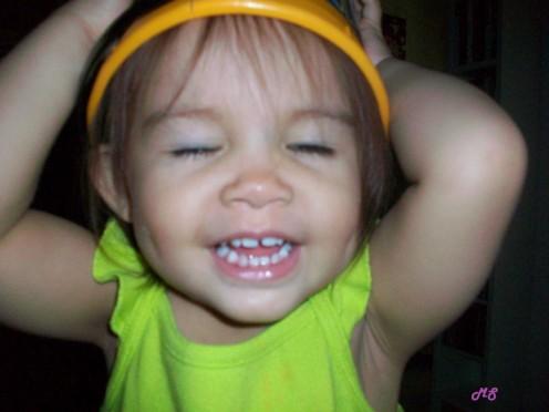 teeth @18 months