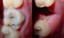 Dream Symbols:  Tooth Loss