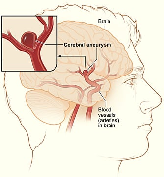Example of coiling an aneurysm