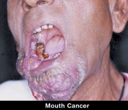 I don't want mouth cancer so I am stopping using snuff or smokeless tobacco today. 7/22/2011