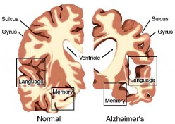 Alzheimer's Disease Prevention: Seven Sins Listed as Risks but Cause not Verified