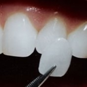 dentalimplants101 profile image