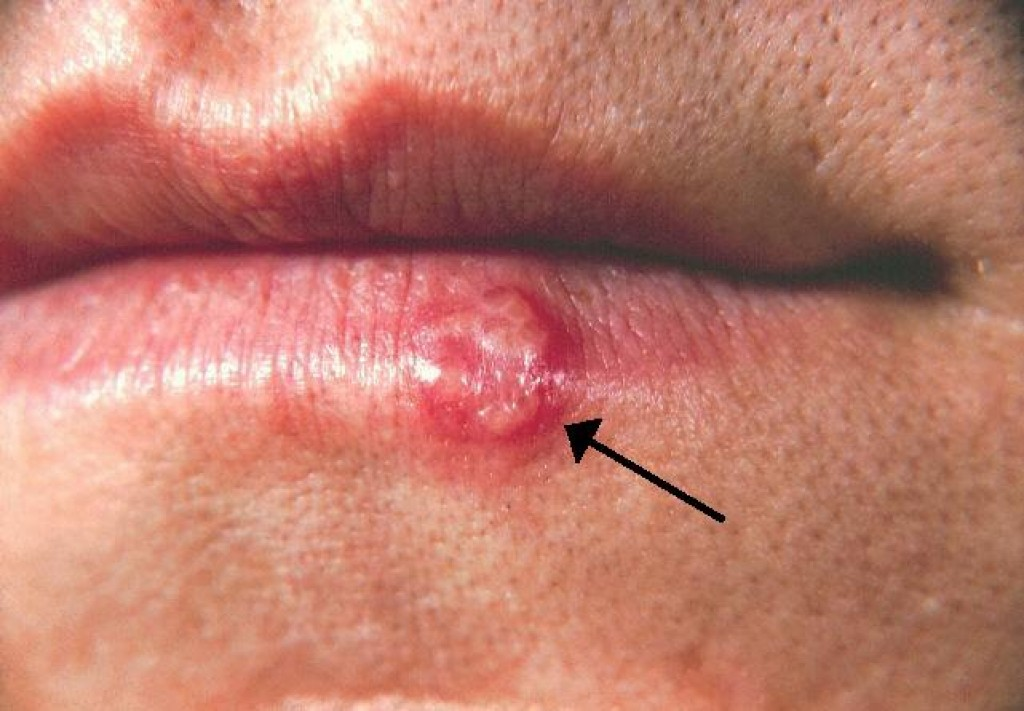 Cold Sores and Ways to Prevent or Combat Them