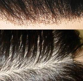 On top can see that the closure knots have not been bleached to look natural and below you can see the line of demarcation on the forehead.