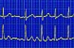 ECG with irregular heartbeat.