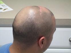 Natural Tips for Hair Loss Treatment